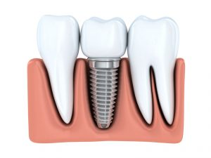 Dental Implants in Bloomfield Hills improve smile function and appearance. Read more from implant dentist, Dr. David G. Banda at Cranbrook Dental Care.